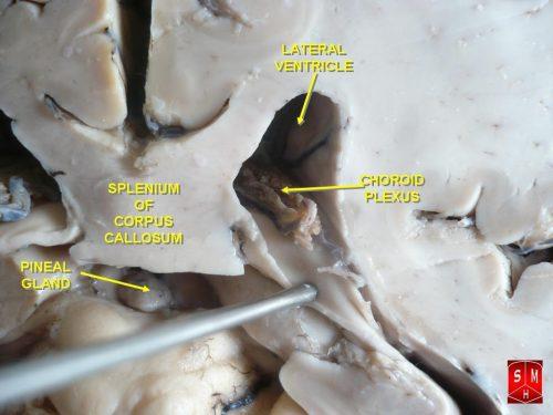Copyright © 2011 Anatomist90. Licensed under CC BY-SA 3.0
